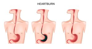 Stomach, esophagus, heartburn. Vector illustration of an esophagus suffering from heartburn Royalty Free Stock Images