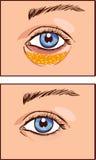 Vector illustration of a eye aesthetic blepharoplasty Royalty Free Stock Photo