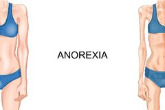 Female figure with anorexia. Vector illustration of female figure with anorexia and obesity royalty free illustration