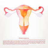 Vector illustration of female genitals, ectopic pregnancy. Royalty Free Stock Photos