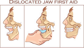 Vector illustration of a first aid dislocated Jaw.  Royalty Free Stock Photos