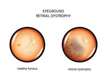 Eyeground. retinal dystrophy. Vector illustration of the fundus. retinal dystrophy Royalty Free Stock Photos