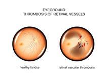 Fundus. retinal vascular thrombosis. Vector illustration of the fundus. retinal vascular thrombosis Royalty Free Stock Image