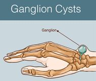 Vector illustration of a Ganglion cyst. Vector illustration of a Ganglion Stock Photography
