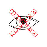 Vector illustration of glaucoma Stock Images