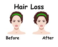 Vector illustration for hair loss treament. And cosmetological procedures Stock Photography