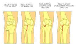 Bone fracture_Tibial plateau fracture. Vector illustration of a healthy bones of human knee and a knee with tibial plateau split, compression or depression Stock Images
