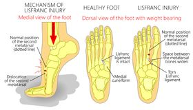 Lisfranc Injury. Vector illustration of a healthy human foot and a foot with lisfranc injury with weight bearing and mechanism of injury, dislocation of the Royalty Free Stock Image
