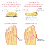 Normal foot and Hallux valgus with rotation of the first mematar. Vector illustration of a healthy human forefoot and a foot with hallux valgus, dislocation of Stock Photography