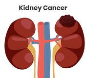 Vector illustration of the kidney cancer. The tumor is affecting left kidney while right kidney is normal royalty free stock image
