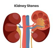 Vector illustration of the kidney stones. Obstruction of the urether with the stone royalty free stock photo