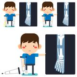 Leg x-ray Tiny cute cartoon patient man character right leg broken in gypsum bandage or plastered leg standing with axillary. Vector illustration, Leg x-ray Tiny vector illustration