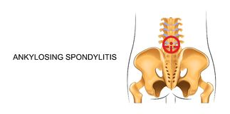 Lower back, suffering from ankylosing spondylitis. Vector illustration of lower back, suffering from ankylosing spondylitis Stock Images