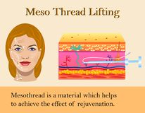 Vector illustration of meso threads lifting isolated royalty free illustration