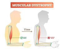 Vector illustration about muscular dystrophy. Compared normal muscle and atrophied muscle. Scheme with healthy and weak human. Muscular dystrophy vector vector illustration