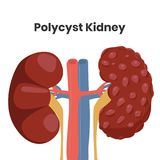 Vector illustration of the polycystic kidney disease, royalty free stock image
