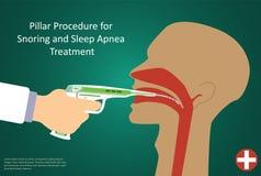 Vector illustration of procedures for sleep apnea pillar operation. Stock Images