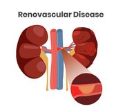 Vector illustration of the renovascular disease. Illustration of the thrombus in the artery of the kidneys royalty free stock image