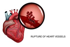 Rupture of blood vessels of the heart. Vector illustration of a rupture of the vessels of the heart Royalty Free Stock Photos