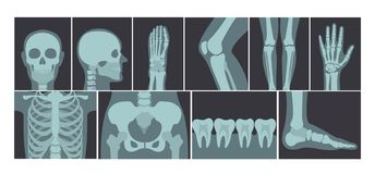 Vector illustration set of many X-rays shots of human body, X-ray pictures of head, hands, legs and other parts of body royalty free illustration