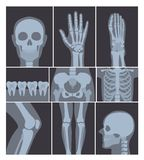 Vector illustration set of X-rays shots. Hand, Head, knee, and other parts of human body on X ray shots on white. Background vector illustration