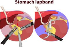 Vector illustration of Stomach gastric band stock illustration