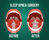 Vector illustration of surgery for obstructive sleep apnea. Vector illustration of surgery for obstructive sleep apnea, before and after result Stock Photos