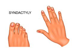 Syndactyly. webbed hand and foot. Vector illustration of syndactyly. webbed hand and foot Royalty Free Stock Image