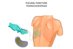 Thoracocentesis,  pleural puncture Royalty Free Stock Image
