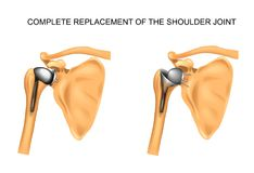 The types of prosthesis of shoulder. Vector illustration of the types of prosthesis of shoulder stock illustration