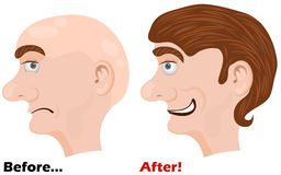 Before and after. Vector illustration of before and after using a miracle lotion vector illustration - man head side face vector illustration