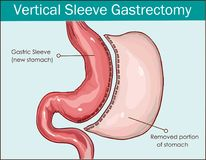 Vector illustration of Vertical Sleeve Gastrectomy.  Stock Images