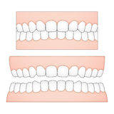 Vector illustration of white teeth and gums from a frontal perspective for medical and dental depictions. The drawing is schematic / diagrammatic. The vectors of Stock Images