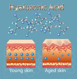 Vector a ilustração com processo de obter a pele velha devido à falta do ácido hialurónico ilustração stock