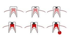 Vector a ilustração das fases das cáries nos dentes Carta dental Foto de Stock Royalty Free