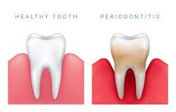 Vector a ilustração médica do dente e do perio saudáveis realísticos fotografia de stock