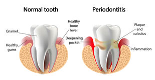 Vector image tooth  Periodontitis disease Royalty Free Stock Images