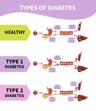 Vector infographic diabetes royalty free illustration