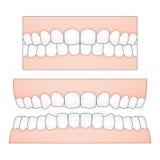 Vector l'illustrazione dei denti e delle gomme bianchi da una prospettiva frontale per i dipinti medici e dentari Immagini Stock