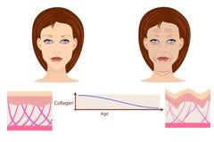 Vector las caras y dos tipos de piel - envejecida y de jóvenes para médico Fotografía de archivo libre de regalías