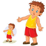 Vector little boy with a rash on his hands and legs. Vector illustration of a little boy with a rash on his hands and legs, chickenpox, smallpox, allergies Stock Photos