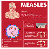 Vector measles infographic Royalty Free Stock Photography