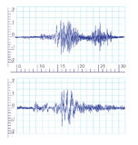 Seismic Earthquake waves image logo. Seismic Earthquake waves image with grids and scales illustration Stock Image