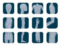 Vector realistic X-ray skeleton icons set. Human Skeleton xray elements. Body parts icon. Stock Photography
