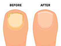 Vector toe nail before and after fungal disease. Vector illustration of a big toe before and after a fungal disease. Isolated white background. Sick fungus nail Royalty Free Stock Photo