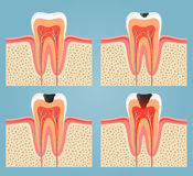 Vector tooth Stock Photo