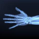 Vector van a-handröntgenstraal Stock Afbeelding