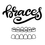 Vector van letters voorziende illustratie over orthodontische behandeling en tandgezondheidszorg met het beeld van steunen op tan vector illustratie