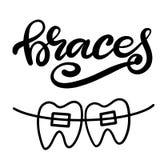 Vector van letters voorziende illustratie over orthodontische behandeling en tandgezondheidszorg met het beeld van steunen op tan stock illustratie