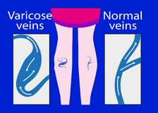 Vector varicose vein and normal vein. Slender and beautiful female legs. Varicose vein royalty free illustration
